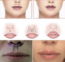 Пластика верхней губы «Bullhorn» схематично пример