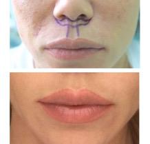 Результат пластики верхней губы «Bullhorn» первичная реабилитация