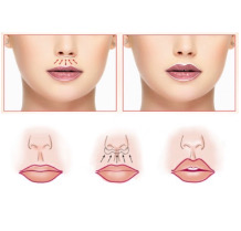 Пластика верхней губы «Bullhorn» схематично