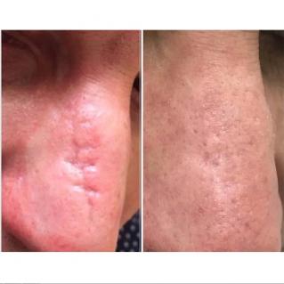 Лазерное удаление шрама на носу