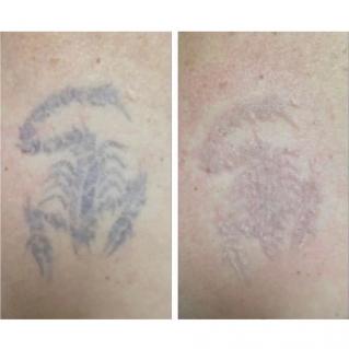 Лазерное удаление тату: до и сразу после одного сеанса