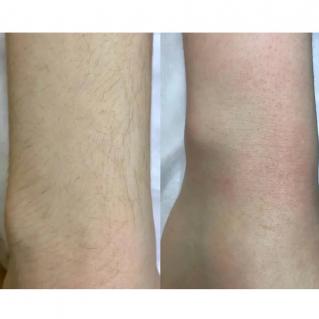 Лазерная эпиляция рук до и после