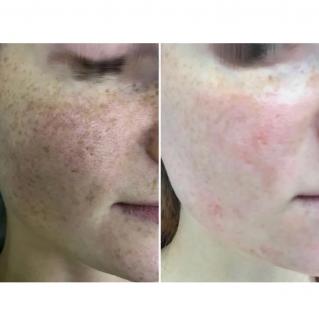 Лазерное удаление пигментаций лица: до и после 1 сеанса