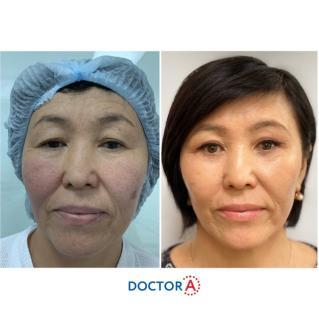 Результат после прохождения первичной реабилитации после подтяжки лица и пластики век