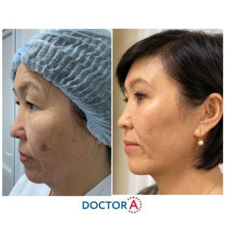 Результат после прохождения первичной реабилитации после подтяжки лица и пластики век ..
