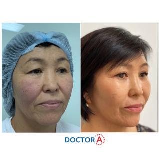 Результат после прохождения первичной реабилитации после подтяжки лица и пластики век .