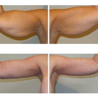 Брахиопластика до и после