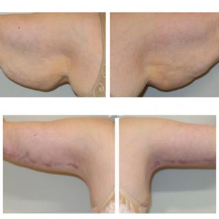 Брахиопластика до и после операции