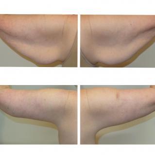Брахиопластика результат до и после