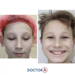 Детская отопластика: фото до и после