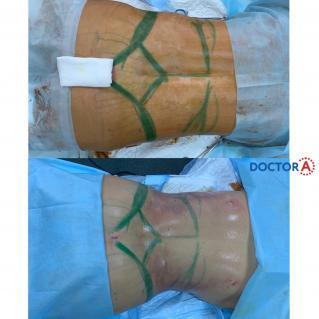 Липоскульптура тела с липофилингом груди вид сзади
