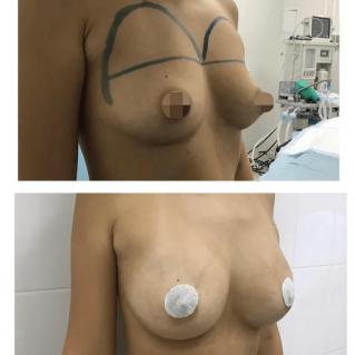 10 сутки после липофилинга груди