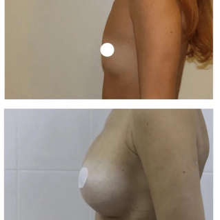 Импланты (круглые), увеличение груди