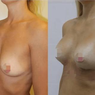 Коррекция груди имплантами