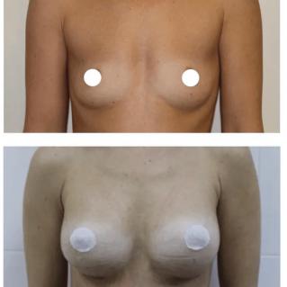 Круглые имплантаты: увеличение груди