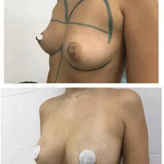 Липофилинг груди, 10 сутки