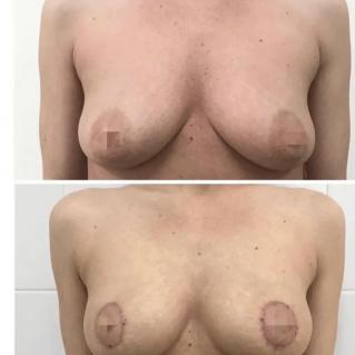 Подтяжка груди ареоларная