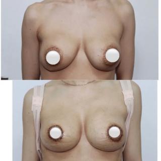 Подтяжка груди через ареолу