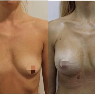 Увеличение груди анатомическими имплантами