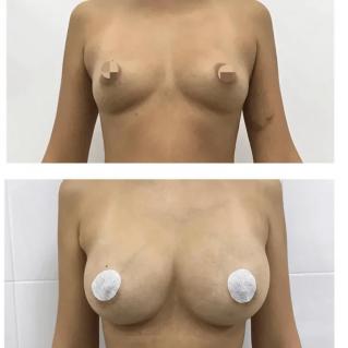Увеличение груди жировой тканью
