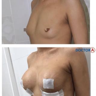 Увеличение груди имплaнтами