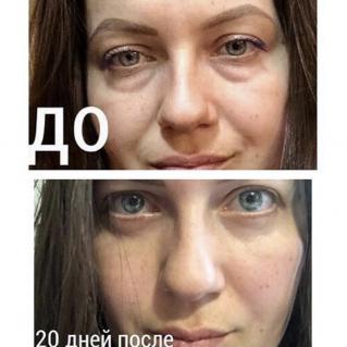 Нижняя блефаропластика: фото до и после