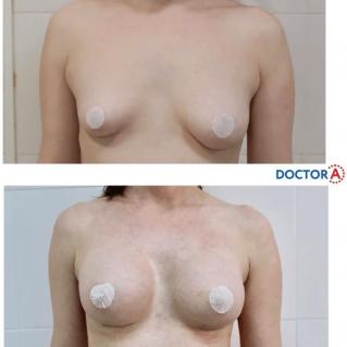 Увеличение груди, имплантация: частичный липофилинг