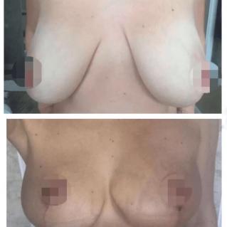Якорная подтяжка груди