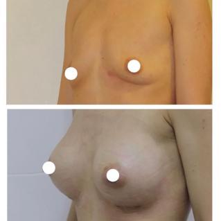 Пластика груди с установкой эргономичных анатомических имплантов