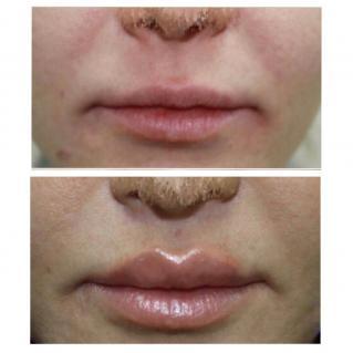 Пластика верхней губы «Bullhorn»: первичная реабилитация