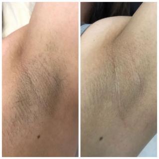 Лазерная эпиляция волос