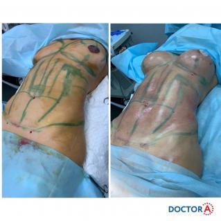 Липофилинг груди «Афродита» с липосакцией проблемных зон