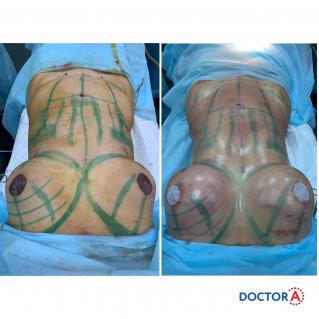 Липофилинг груди с липосакцией проблемных зон