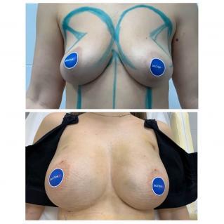 Липофилинг груди сразу после операции