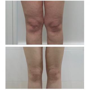 Липосакция коленей до и после первичной реабилитации