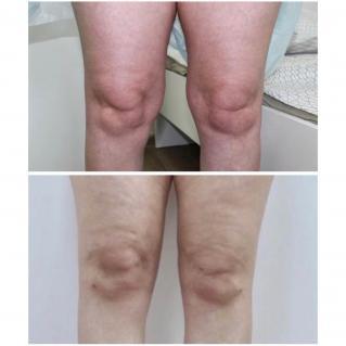 Липосакция коленей первичная реабилитация до и после