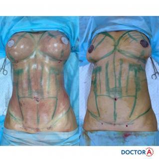 Липоскульптура с липофилингом груди до и сразу после операции