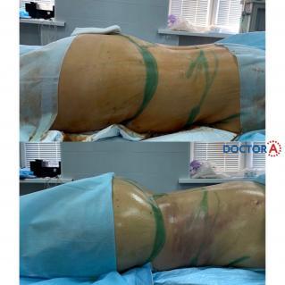 Липоскульптура тела с липофилингом груди вид сбоку