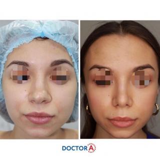 Пластика носа до и через месяц после операции