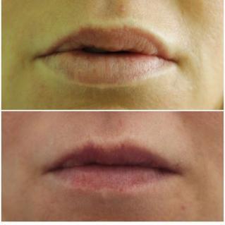 Удаление биополимера из губ