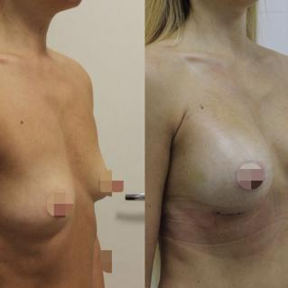 Увеличение груди анатомическими имплантами: первичная реабилитация